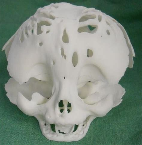 3D Printing Saves the Life of a Newborn with Cloverleaf