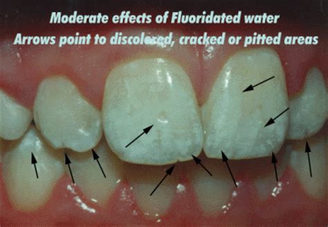 Fluoride Is Toxic and Your Children Are Being Poisoned!