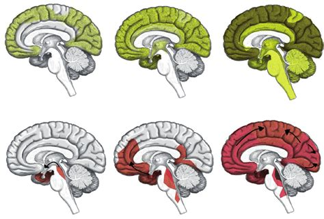 - Spreading of pathology in Alzheimer Disease: amyloid